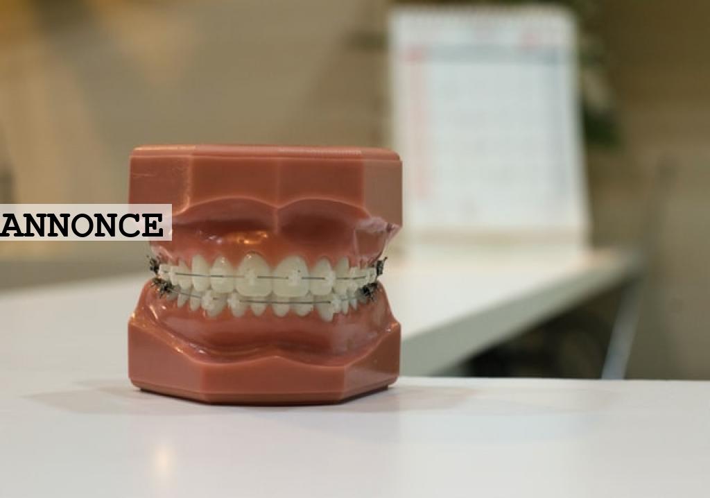Spar penge ved at booke din tid hos tandlægen regelmæssigt